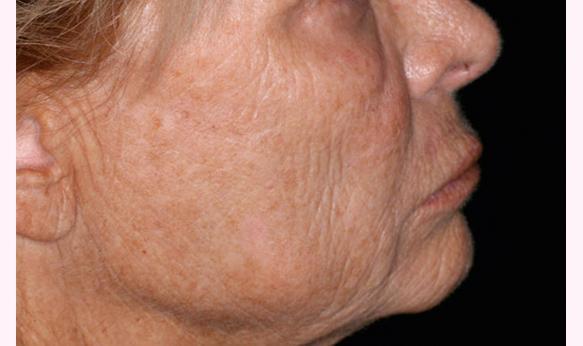 Come togliere rughe sotto occhi in 37 anni